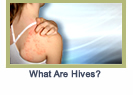 hives